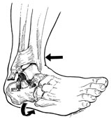 the most common ankle injury