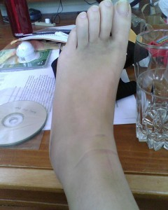 doctor for sprained ankle