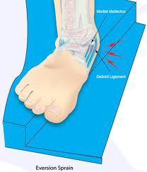 eversion sprain